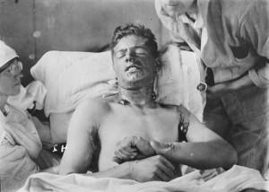 как применяли химическое оружие в первую мировую войну