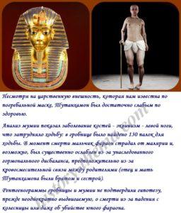 чем болел Тутанхамон